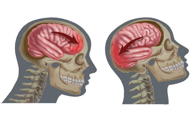Синяк в мозгу