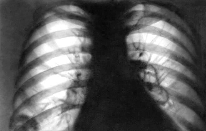 Снимок легких при болезни Вегенера