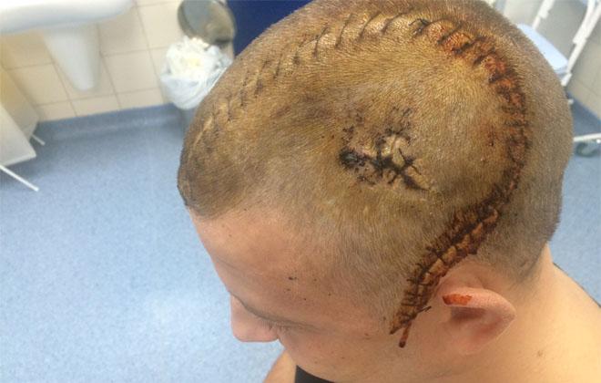 Трепанация (операция) черепа