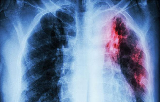 Туберкулез патология