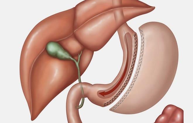 Удаления части части желудка