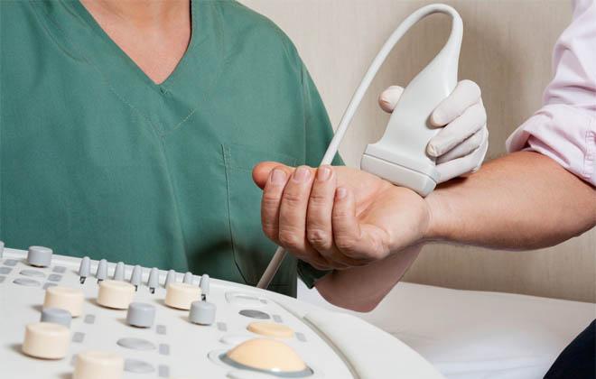 УЗИ-допплерография рук