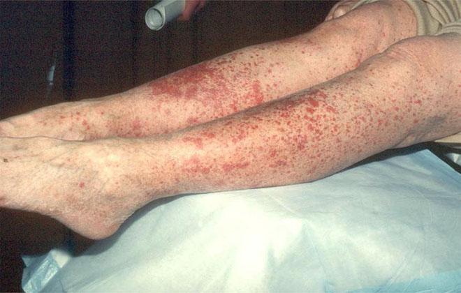 Васкулиты на коже ног