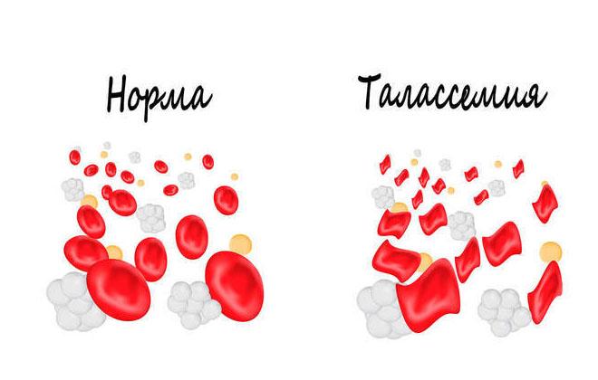Заболевание в крови