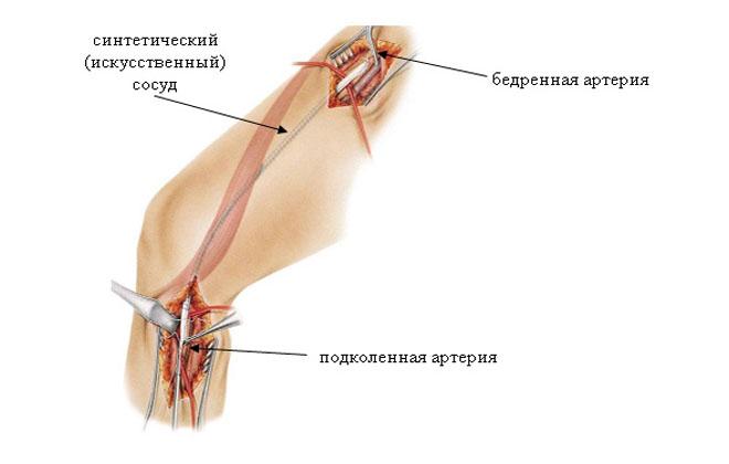 Болезнь артерии бедра