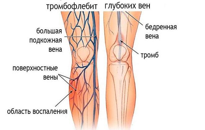 Болезнь на ногах