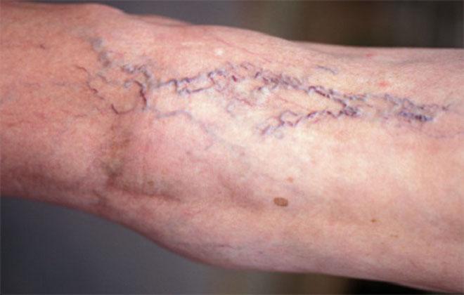 Болезнь вен на ногах