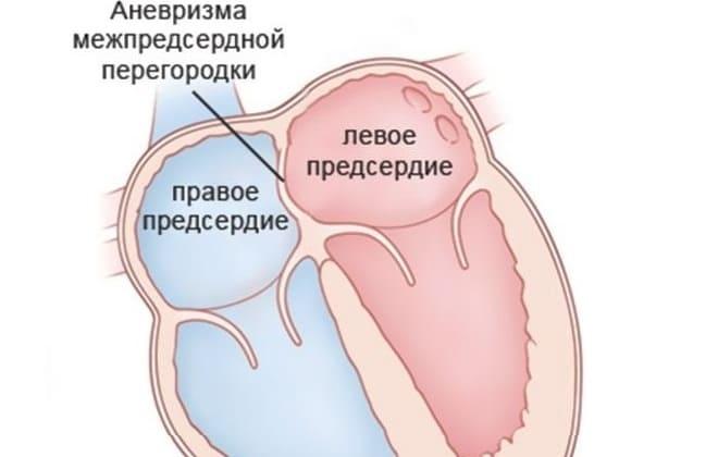 Дефект перегородки сердца