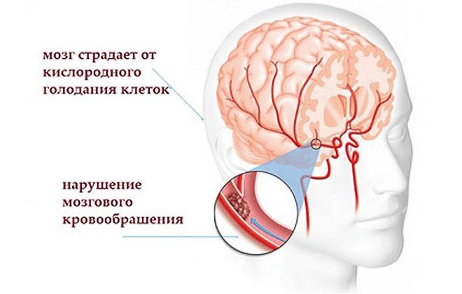 Дисфункции в мозгу