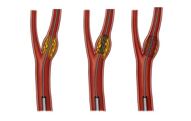 Хирургическая процедура на сонной артерии