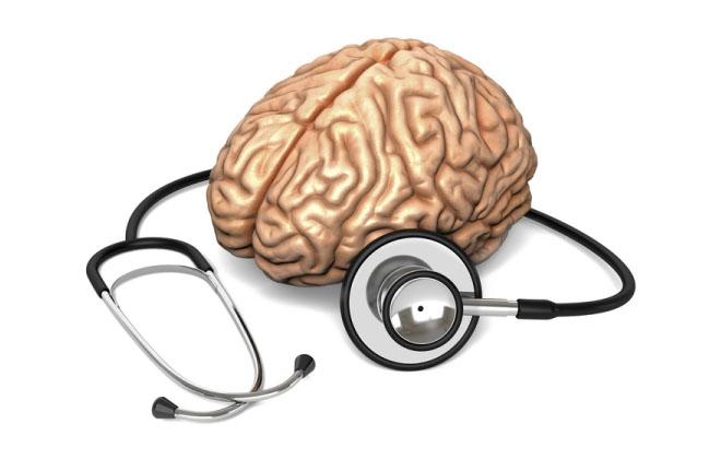 Инсульты мозга
