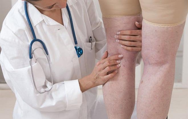 Изменение состояния кожи ног