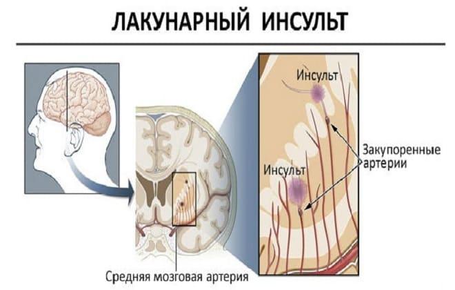 Лакунарный инсульт