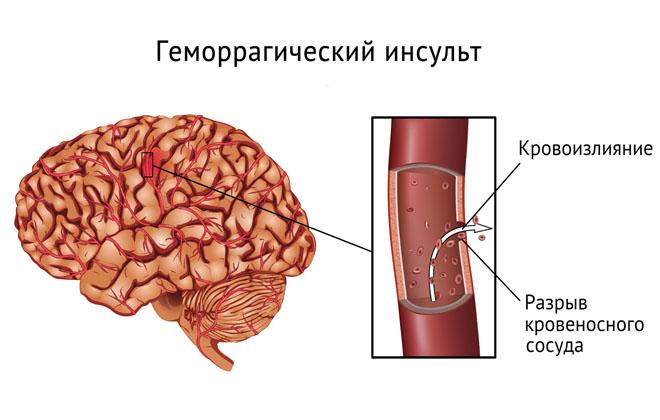 Нетравматическое кровоизлияние