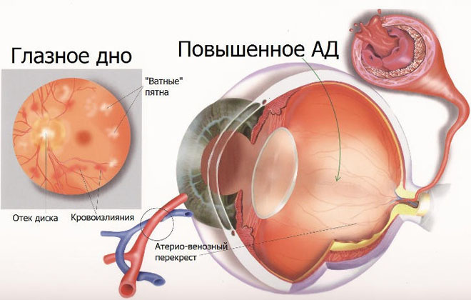 Осложнения глаз