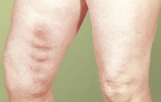 Острая форма болезни ног