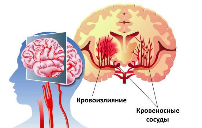 Паренхиматозное кровоизлияние