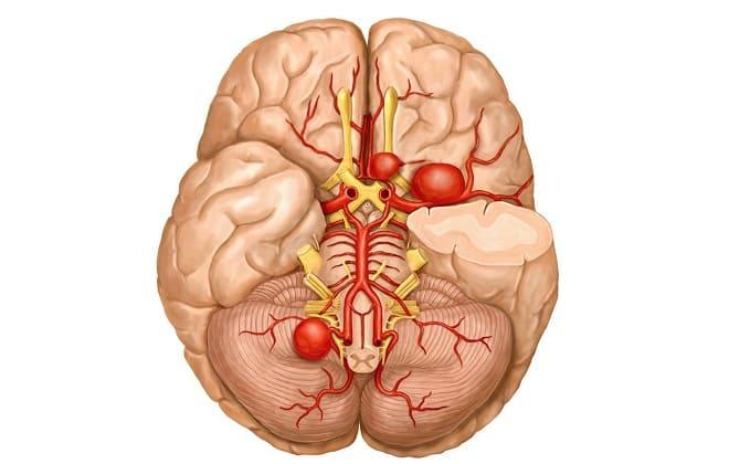 Расширение артерий в голове