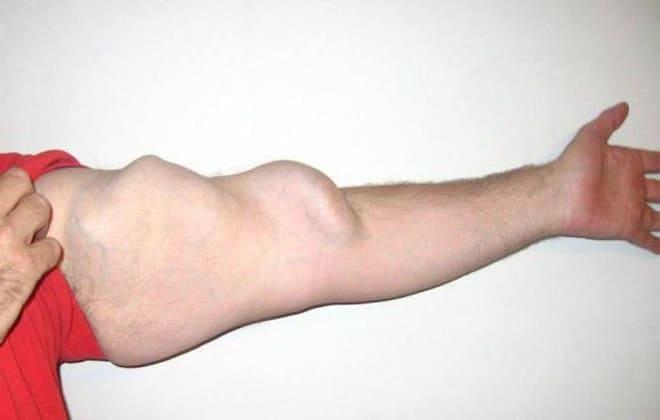 Разрывы аневризм на руке