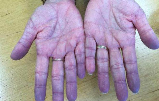 Синяя болезнь