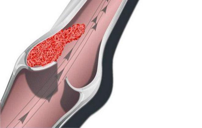Тромбоз в венах ног