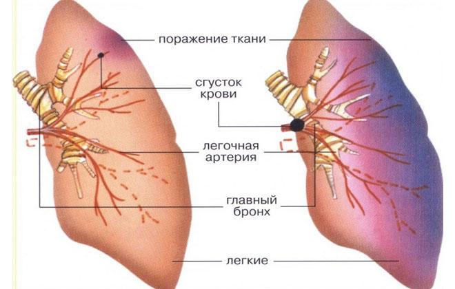 Тромбы легких