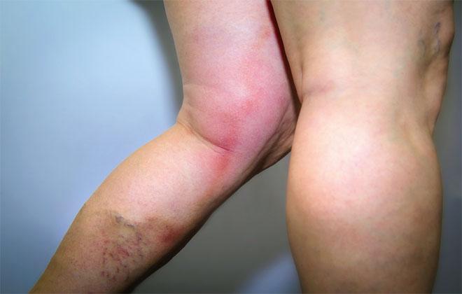 Тромбы на ногах