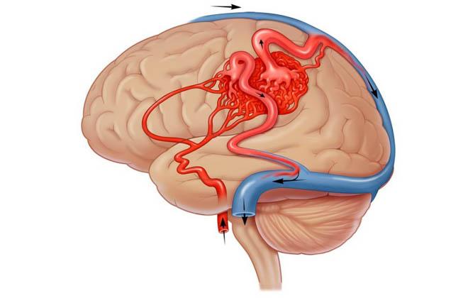 Вазоспазм в голове