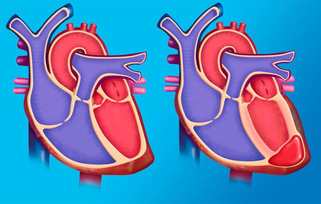 Выпячивание внешней сердечной стенки