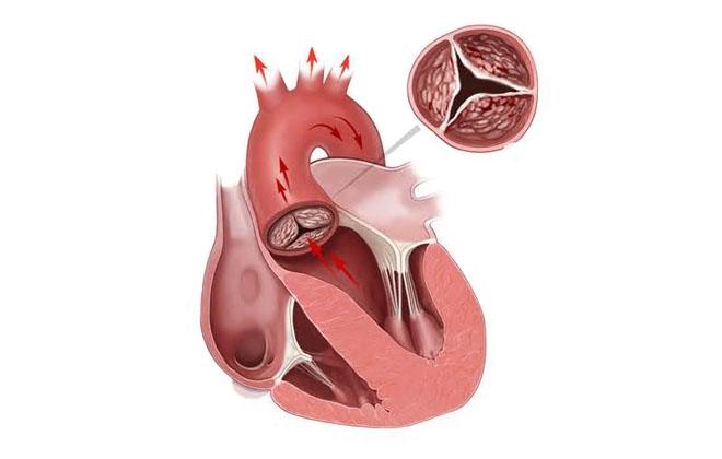 Заболевание артерий