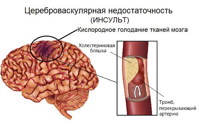 Заболевание сосудов головного мозга