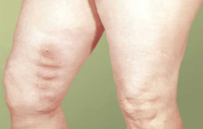 Заболевание тромб нижних конечностей