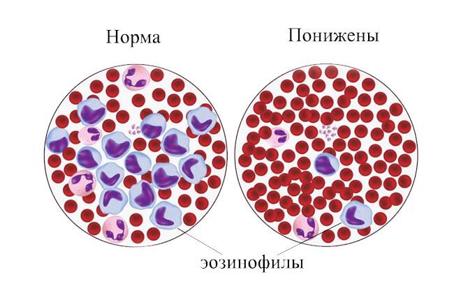 Клетки эозинофилы понижены