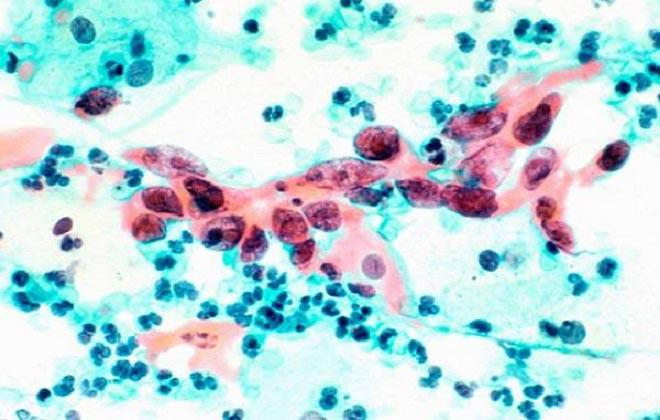 Много лейкоцитов