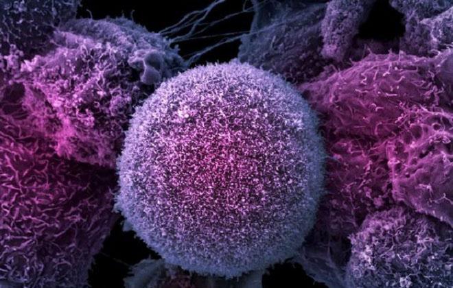Низкое содержание лимфоцитов