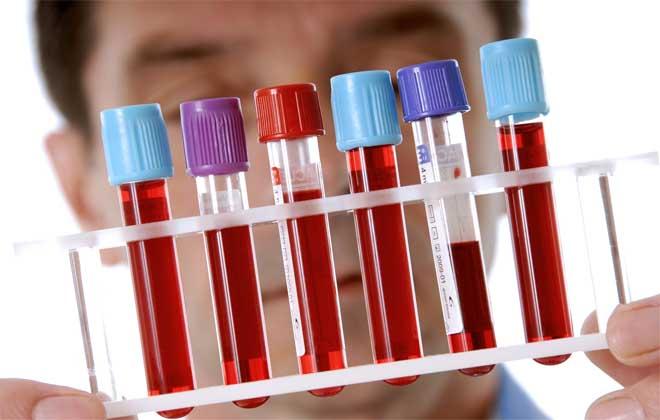 Проверка крови на содержание СОЭ