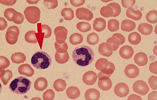 Вид лейкоцитов