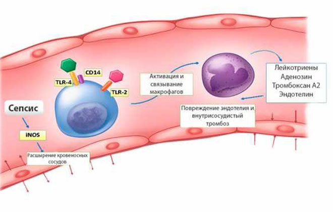 Внутрисосудистый гемолиз