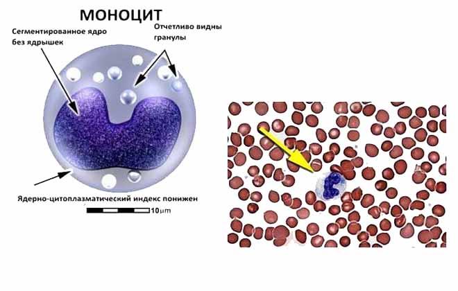 Моноциты в крови выше нормы