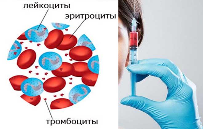 Разные клетки крови