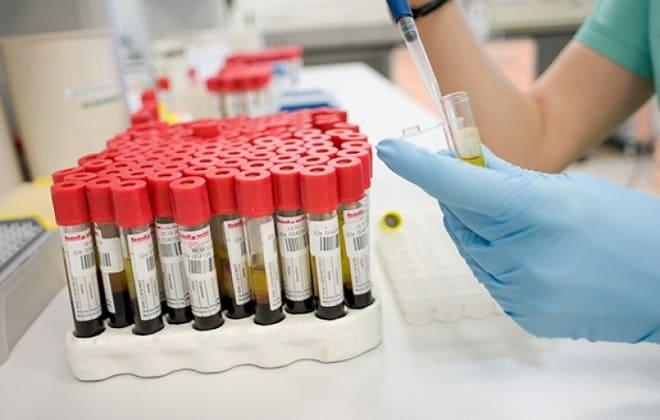 Исследование венозной крови