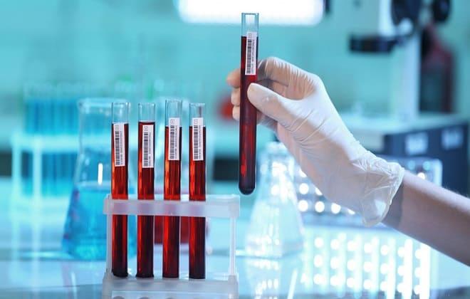 Как правильно сдавать анализ в лаборатории