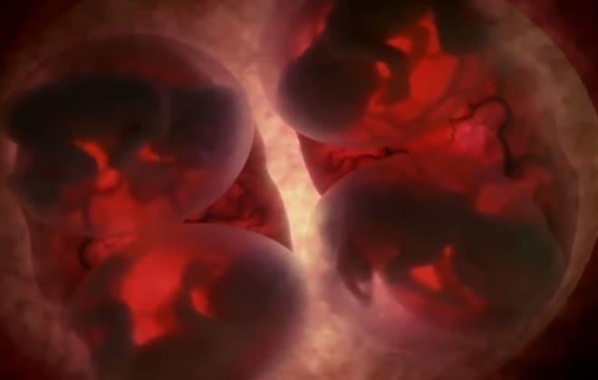 Несколько эмбрионов в матке
