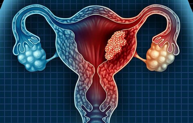 Новообразования в органах репродуктивной системы