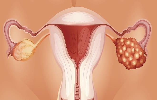 Рак яичников у женщины