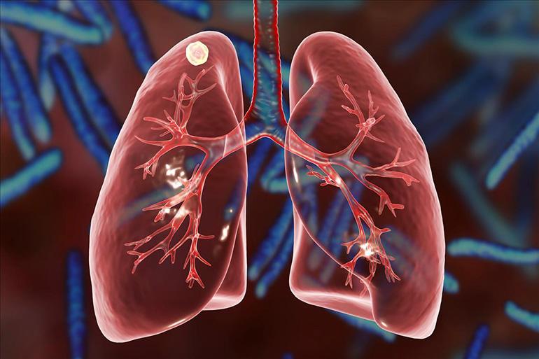 Развитие очагового туберкулеза