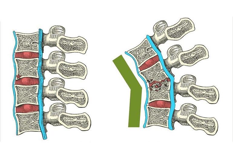 Туберкулез позвоночника и костей