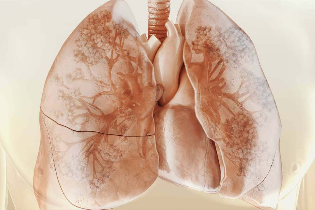 Фиброз легких