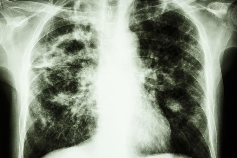 Разновидности туберкуломы