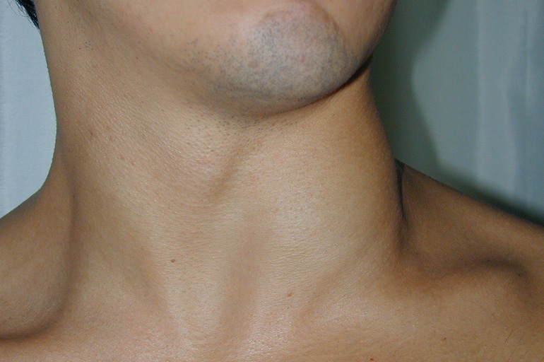 Туберкулез лимфоузлов
